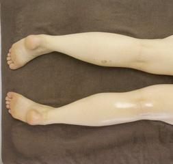 女性のお客様を驚かす!身体の変化を即実感!【痩身インドエステ】~脚編~ 【新宿 飯田橋 1DAY】
